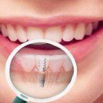 Какова альтернатива имплантации зубов?
