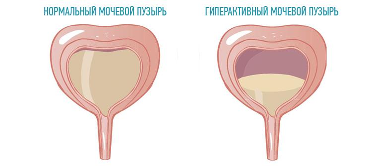 Простатит у мужчин симптомы и последствия