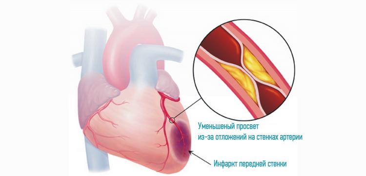 изменить параметры как вызвать инфаркт сердца параметров, используемых форме