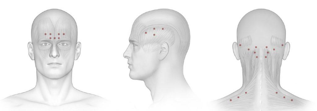 Ботулинотерапия. Лечение головной боли и мигрени - ботулинотерапия. Клиника Президент-Мед на Коломенской