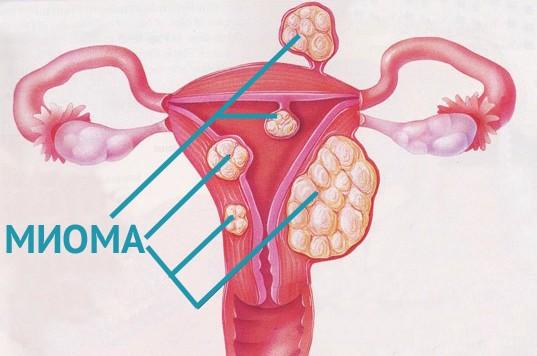 Эндометриоз матки психосоматика