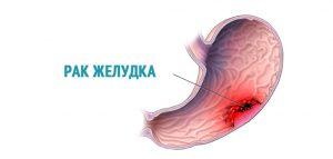 Но клиническая картина рака желудка проявляется довольно поздно, либо на третьей или на четвертой стадии развития болезни.
