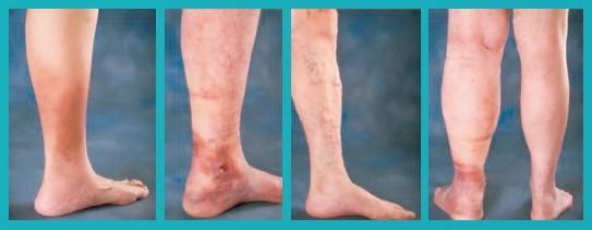 венозная недостаточность на ногах